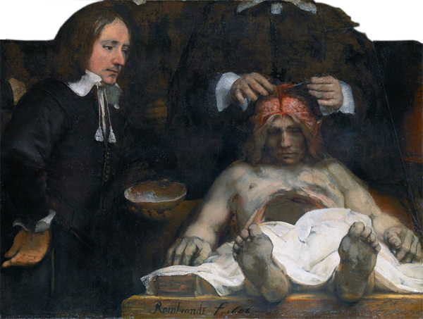 Dr_Deijman's_Anatomy_Lesson_(fragment),_by_Rembrandt